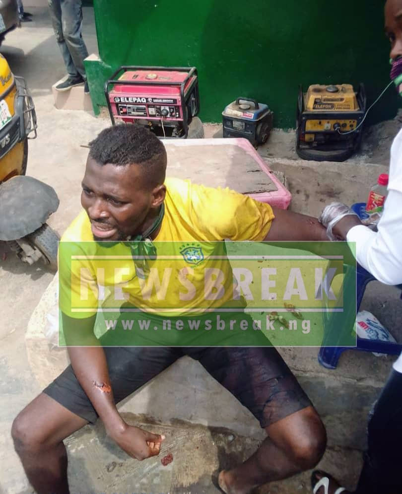 Tayo Philip being treated before detention at Panti